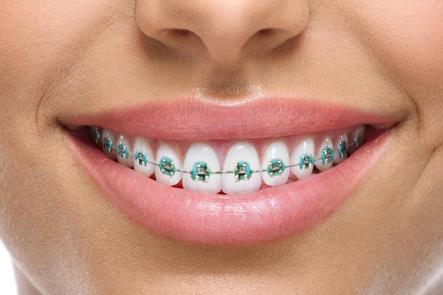 ¿Qué sucede con los tratamientos de ortodoncia durante el confinamiento?