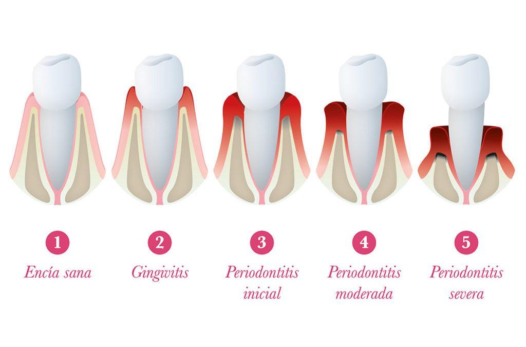 La periodontitis está relacionada con el cáncer