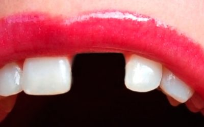 Actúa rápido si se te cae un diente, ven a CEOSC