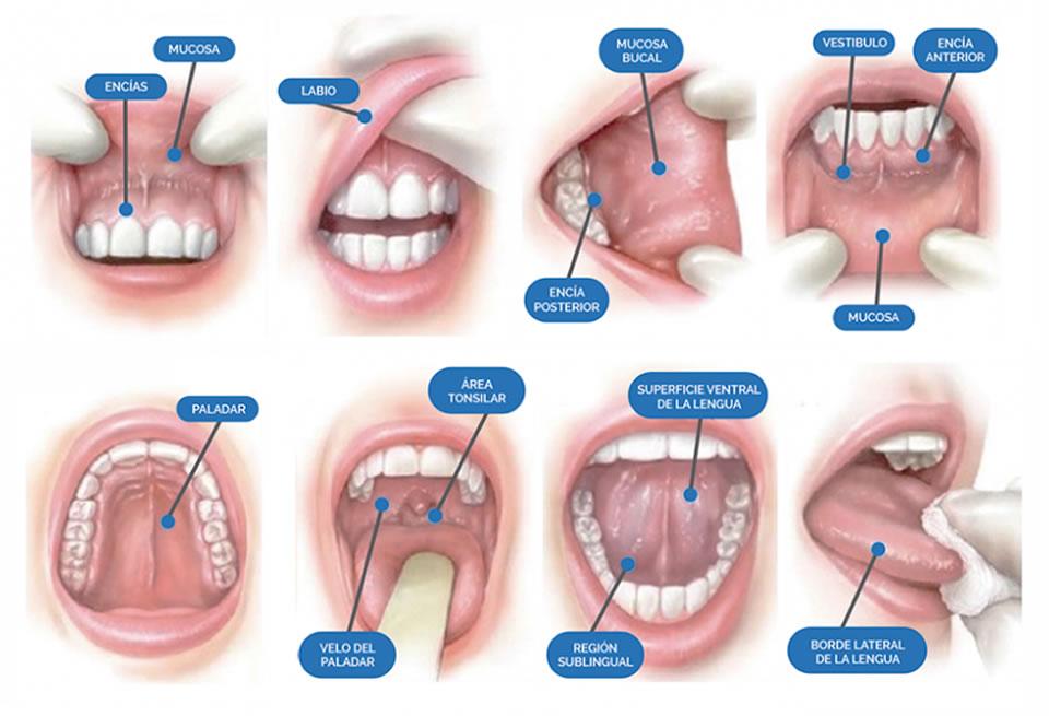 La autoexploración de la boca y la visita anual al dentista, medidas para prevenir el Cáncer Oral