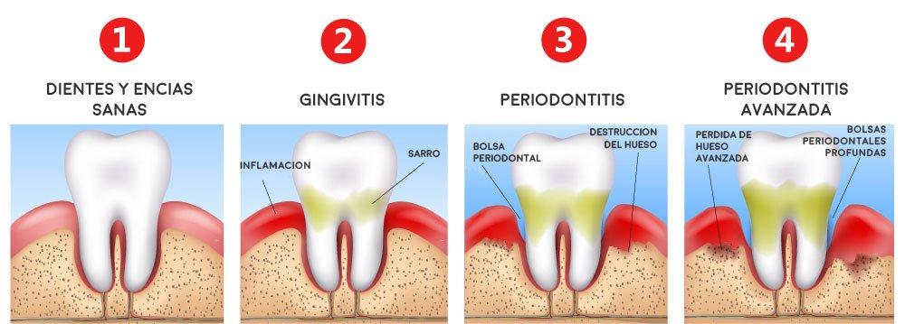 Los pacientes con periodontitis tienen casi 9 veces más posibilidades de fallecer si sufren COVID-19